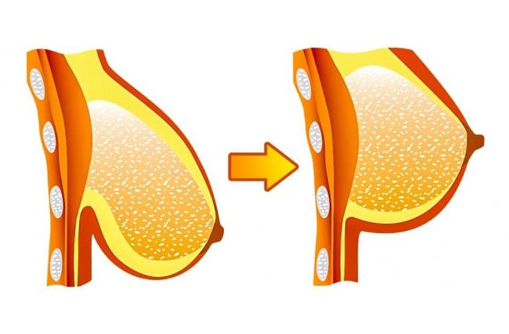 7 σούπερ αποτελεσματικές στάσεις της γιόγκα για όμορφο στήθος