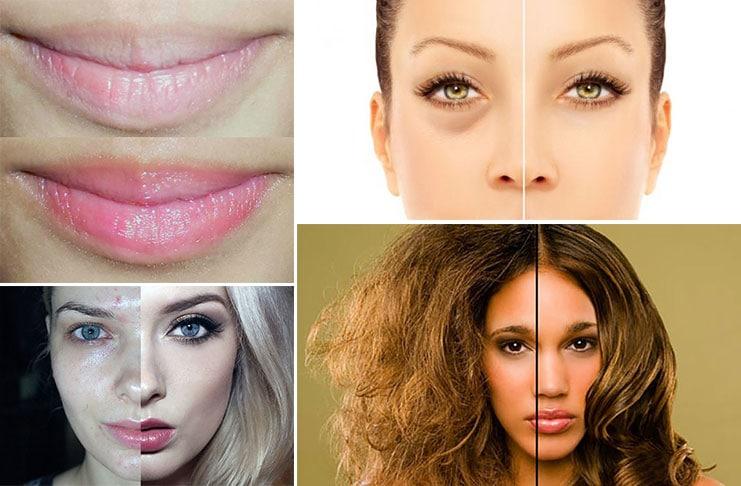 Σημάδια έλλειψης βιταμινών που κυριολεκτικά φαίνονται στο πρόσωπό σας (1)