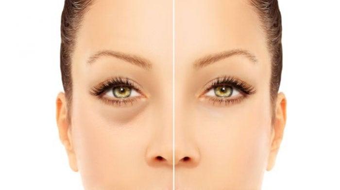 Σημάδια έλλειψης βιταμινών που κυριολεκτικά φαίνονται στο πρόσωπό σας (4)
