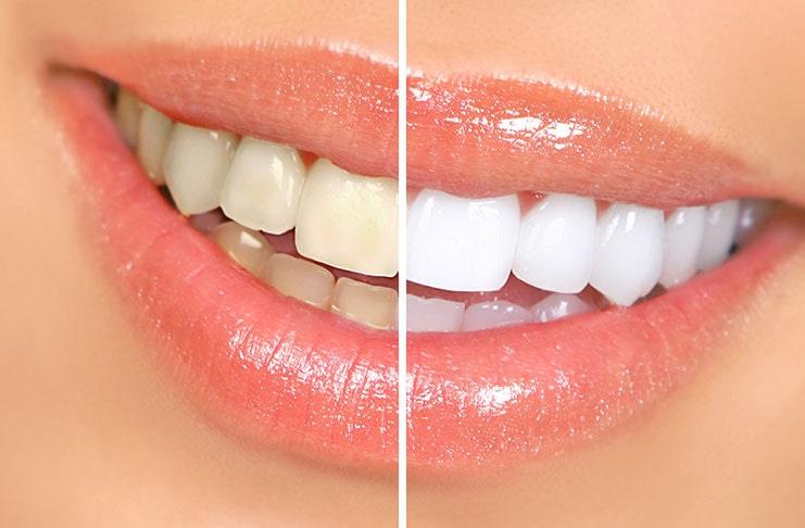 Λευκό χαμόγελο με τις κατάλληλες τροφές