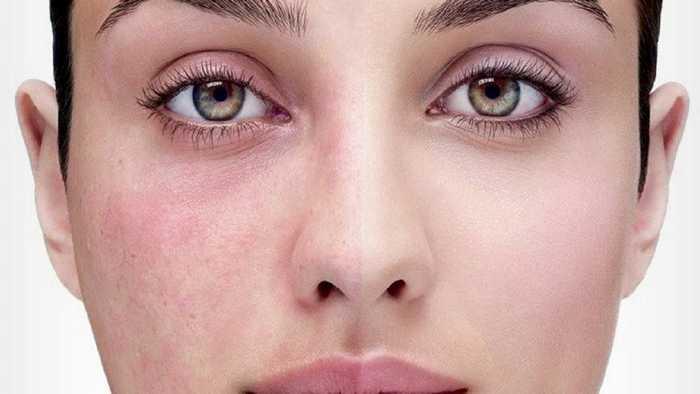 8 καθημερινά μυστικά ομορφιάς για να προλάβετε την πρόωρη γήρανση (5)