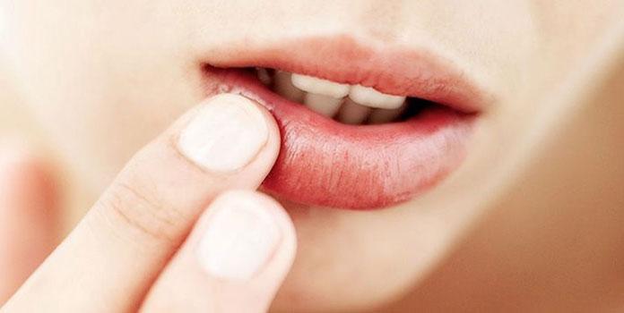 Σκασμένα χείλη (2)