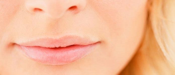 Σκασμένα χείλη (4)