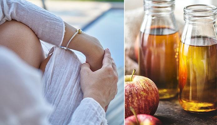 Πανάδες - καφέ κηλίδες στα χέρια (2)